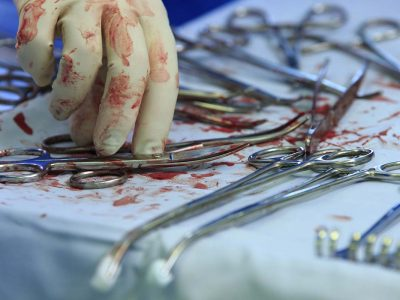 bloodstained surgical instruments and surgeon's hand in bloody glove taking clamp close-up